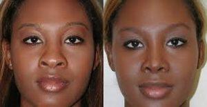 suites-operatoires-rhinoplastie-ethnique-tunisie