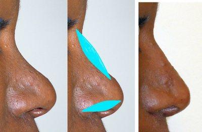 rhinoplastie pour noirs : rhinoplastie-ethnique-tunisie