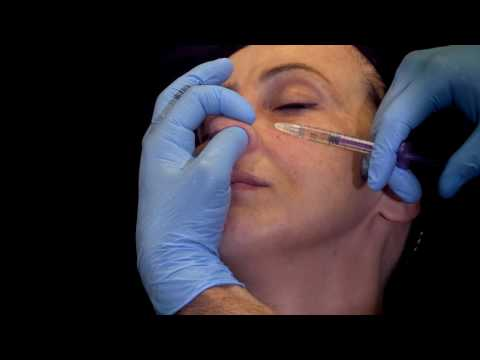 rhinoplastie medicale botox Tunisie
