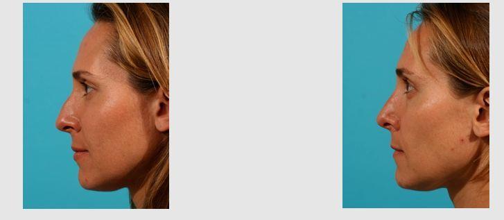 rhinoplastie tunisie: chirurgie esthetique nez