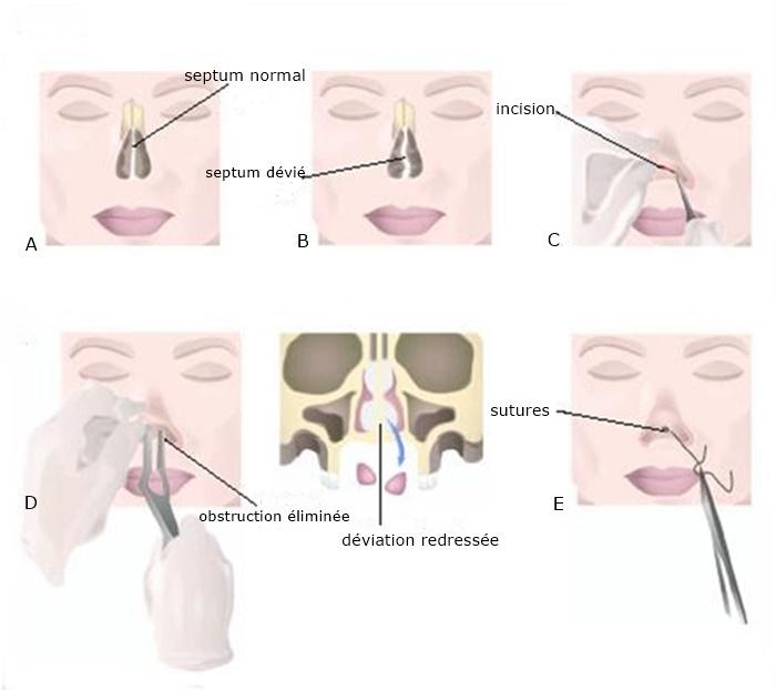 septoplastie tunisie : reparer la cloison nasale et soulager la respiration