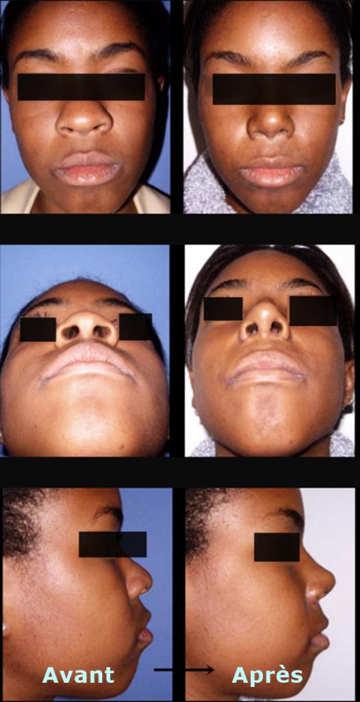 rhinoplastie ethnique avant apres