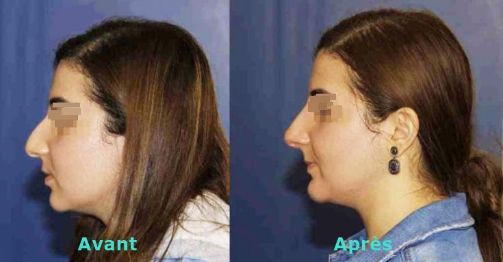 rhinoplastie medicale avant apres