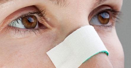 septoplastie tunisie : pour corriger la déviation de la cloison du nez
