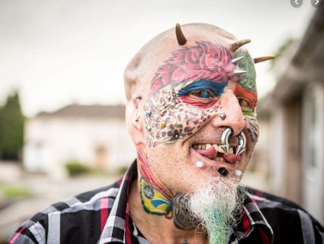 rhinoplastie: homme perroquet