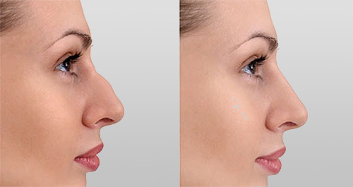 rhinoplastie medicale injection  acide hyaluronique